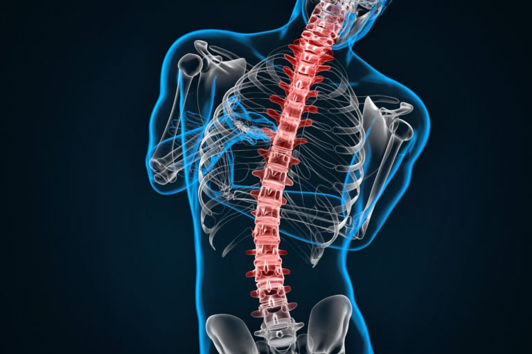 Spondylosis and Scoliosis Treatment | Optimal Wellness Co. - Boulder Massage Therapists