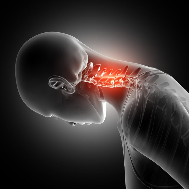 Whiplash Injury Treatment   Boulder Massage Therapists   Optimal Wellness Co