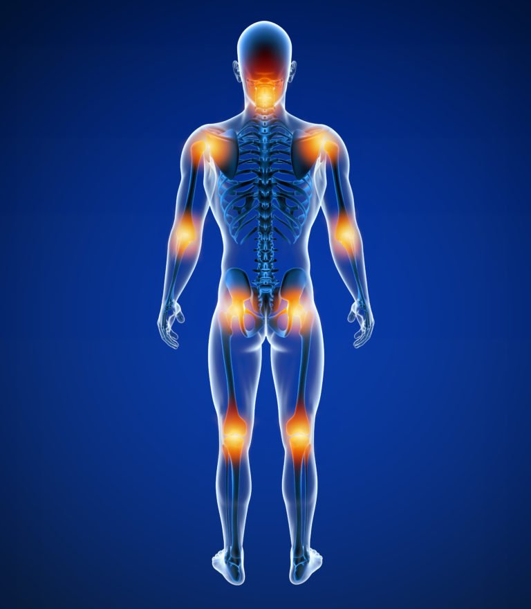 Fibromyalgia Treatment   Optimal Wellness Co