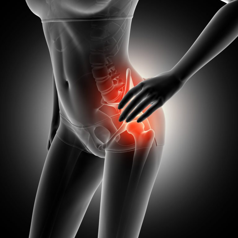 Sciatica Pain Treatment | Therapeutic Massage Center | Optimal Wellness Co