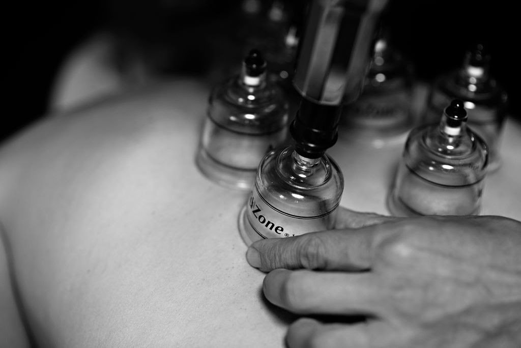What is Cupping Therapy?   Benefits of Cupping Therapy for Athletes
